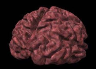 Brain Atrophy Linked With Cognitive Decline In Diabetes