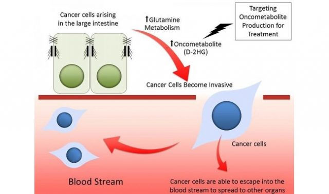 Metabolite That Makes Colorectal Cancer More Aggressive Identified